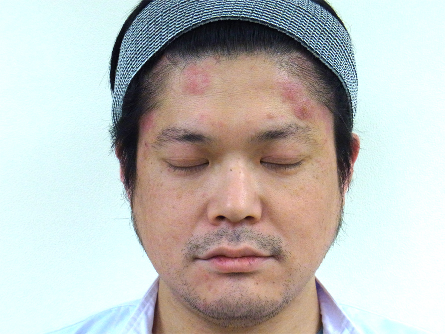 治し 方 副作用 顔 ステロイド